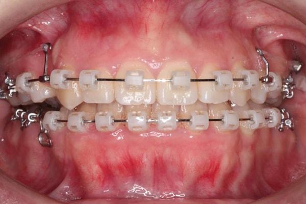 歯列矯正(矯正歯科)